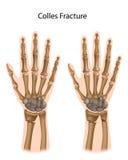 Fracture de Colles illustration libre de droits