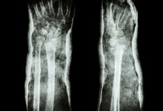 Fracture distal radius and cast Stock Images
