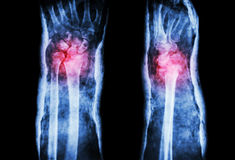 Fracture distal radius (Colles' fracture) and cast Royalty Free Stock Photos