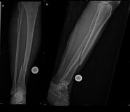 Fracture of fibular and tibial bone Stock Images