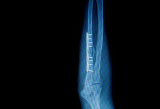 Fracture forearm with  internal fixed by plate Royalty Free Stock Photography