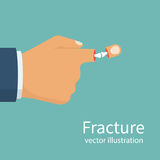 Fracture hand. Broken finger. Vector illustration flat design. Bone arm skeleton. Vector illustration flat design. Isolated on white background Stock Images