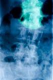 Fracture lombaire Image libre de droits