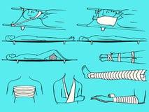 Fracture los primeros auxilios Foto de archivo libre de regalías