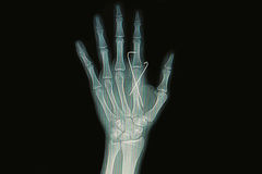 Fracture metacarpal bone insert with k-wire Royalty Free Stock Image