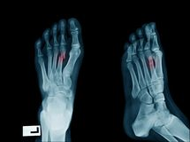 Fracture 2nd toe of left foot. In blue tone stock photography