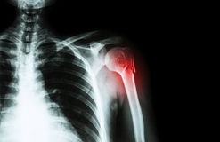 Fracture at neck of humerus ( arm bone ) ( film x-ray left shoulder and blank area at right side ) Stock Image