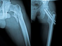 Fracture and repair of femoral bone Stock Image