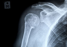 Fracture of a right human upper arm after accident. Anterior-posterior x-ray image of the shoulder stock image