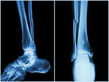 Fracture shaft of fibula bone ( leg bone ) . X-ray of leg ( 2 position : side and front view. ) stock photography