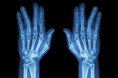 Fracture shaft of proximal phalange of ring finger ( film x-ray both hand AP ) Stock Image