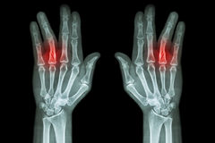 Fracture shaft of proximal phalange of ring finger ( film x-ray both hand AP ) Royalty Free Stock Photography