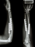 Fracture shaft of radius & ulnar bone. Stock Photography