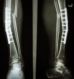 Fracture shaft of tibia and fibula. Film leg AP/lateral : show fracture shaft of tibia and fibular (leg's bone). patient was operated and insert plate and screw Stock Photos