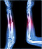 Fracture shaft of ulnar bone ( forearm bone ) :  ( front and side view ) Stock Photo