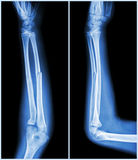 Fracture shaft of ulnar bone ( forearm bone )  :  ( front and side view ) Stock Photos