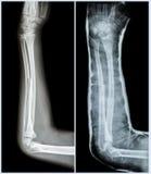 Fracture shaft of ulnar bone ( forearm bone )   Stock Photo