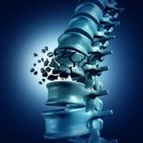 Fracture spinale Images libres de droits