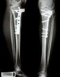 Fracture tibia(leg bone). It was operated and internal fixed by plate&screw Stock Photo