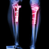 Fracture tibia(leg bone). It was operated and internal fixed by plate&screw Stock Photography