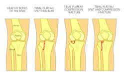 Fracture_Tibial Hochebenenbruch des Knochens Stockbilder