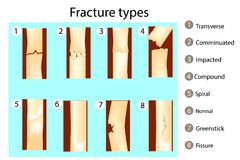 Fracture types of bones. stock illustration
