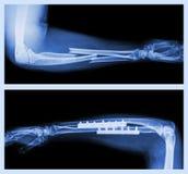 Fracture ulnar and radius (Forearm bone) Royalty Free Stock Photos