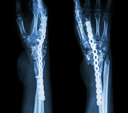 Fracture wrist and chronic infection. It was operated and intern Stock Images