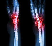 Fracture wrist and chronic infection. It was operated and intern Royalty Free Stock Photography