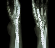 Fracture wrist and chronic infection. Stock Photo