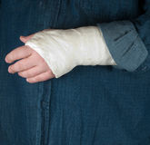 Fractured hand in a gypsum plaster Royalty Free Stock Photo