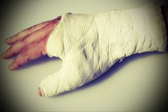 Fractured hand of the man with the orthopedic plaster cast and a stock photos