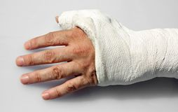 Fractured hand with the white orthopedic cast royalty free stock photos