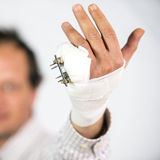Fractured pinky finger. Fractured hand with an external fixture attached to the pinky Royalty Free Stock Photography
