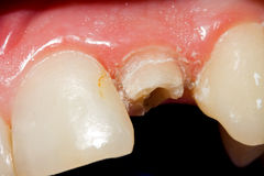 Fractured tooth Stock Image