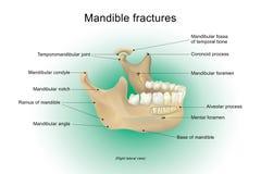 Fractures de mâchoire inférieure Image libre de droits