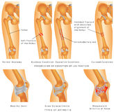 Fractures of Femur Stock Photos