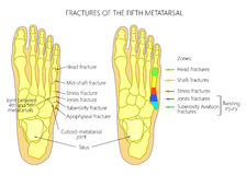 Fractures of the 5th metatarsal. Illustration (diagram) of the fifth metatarsal Fractures (types and zones classification) in the foot Stock Photos