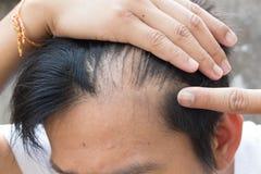 Frage des älteren Mannes und des Haarausfalls Stockbild