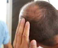 Frage des älteren Mannes und des Haarausfalls stockfoto