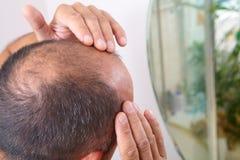Frage des älteren Mannes und des Haarausfalls lizenzfreie stockfotos
