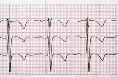 Fragment of a normal children`s electrocardiogram with arrhythmia elements. Medical research. Fragment of a normal children`s electrocardiogram with arrhythmia royalty free stock photography
