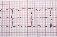 Fragment of a normal electrocardiogram with arrhythmia elements. Medical research. Fragment of a normal electrocardiogram with arrhythmia elements stock images