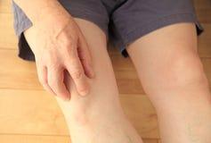 Frais généraux d'aîné avec douleur dans le genou Photos stock