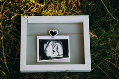 Frame with ultrasound photo. On green grass royalty free stock image