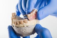 Framlägga för tandläkare Fotografering för Bildbyråer