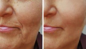Framsida av en gammal skrynklakvinna före och efter fotografering för bildbyråer