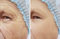 Framsida av gamal manskrynklor före och efter föryngringtillvägagångssätten royaltyfri foto