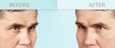 Framsida av mogna kosmetiska föryngra tillvägagångssätt för en man före och efter, med kopieringsutrymme i mitten royaltyfri fotografi