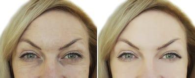 Framsida av skrynkla före och efter e för kvinna` s ja royaltyfri bild